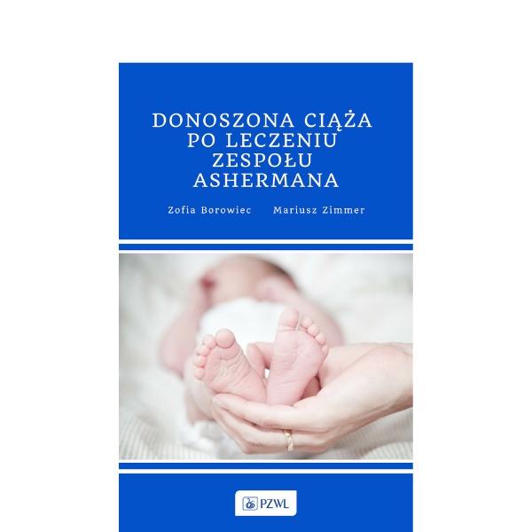 Donoszona ciąża po leczeniu zespołu Ashermana