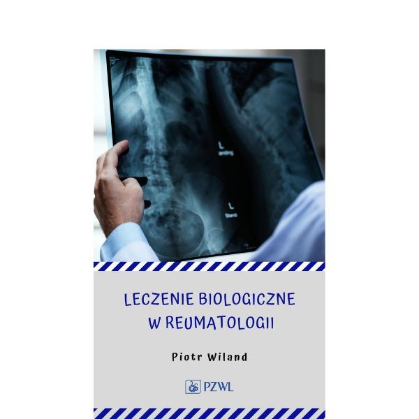 Leczenie biologiczne w reumatologii